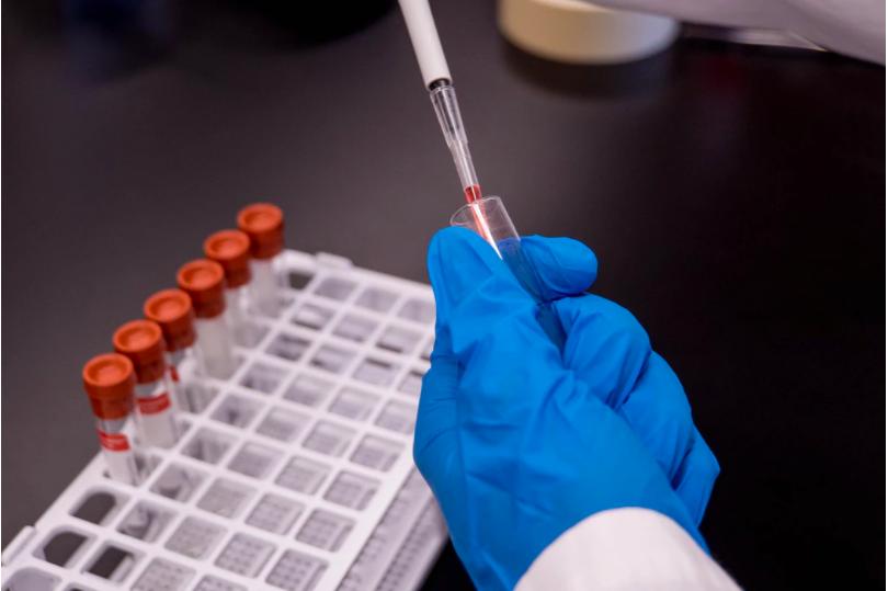 """La UAM, el IIBM """"Alberto Sols"""" y la Fundación Parque Científico de Madrid abren una unidad de diagnóstico Covid-19"""